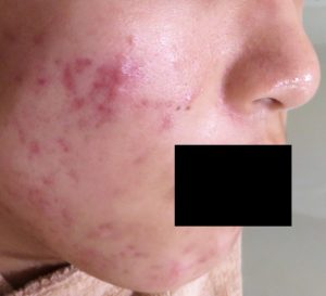acne-before-right-black