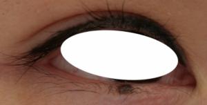 下眼瞼NCN2-1024x229 1