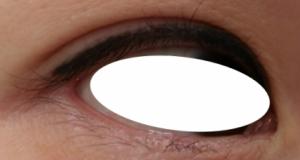 下眼瞼NCN2-1024x229 2