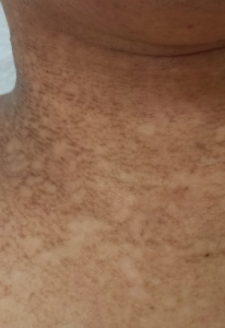AD dirty neck治療後-2の拡大