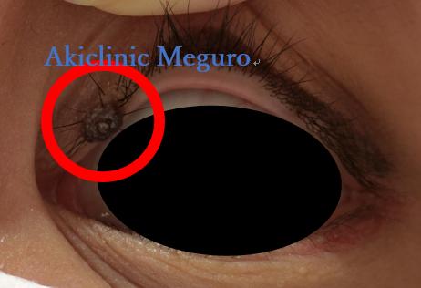 でき 目 の もの 粘膜