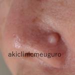鼻いぼ術前