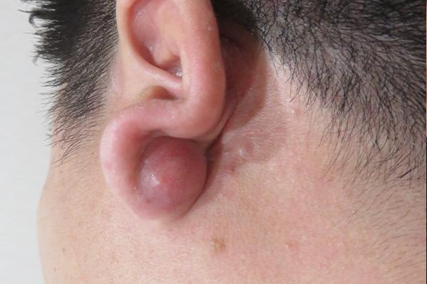 耳 の 後ろ しこり 痛い